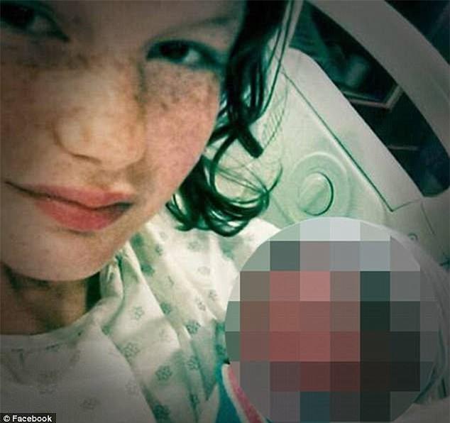 Bố mẹ nghiện ngập bỏ rơi, cô bé 15 ngày tuổi bị chuột cắn tới 100 nhát, tổn thương nặng ở vùng mặt - Ảnh 2.