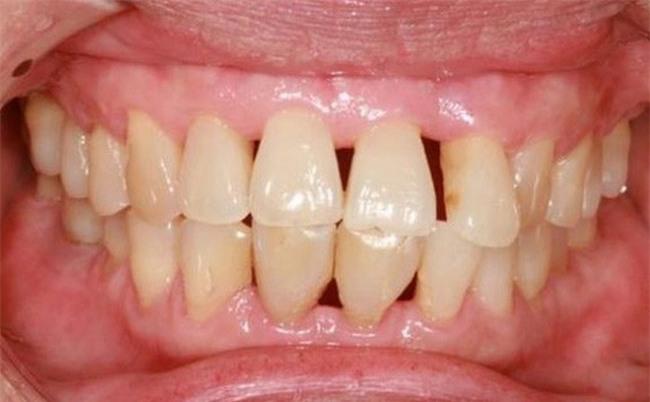Có thể bị ung thư phổi, ung thư đại tràng vì vệ sinh răng miệng kém-1