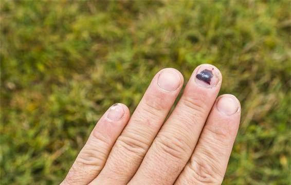 Những thay đổi về độ dày hay màu sắc của móng tay có thể là dấu hiệu của những vấn đề về sức khoẻ.-3