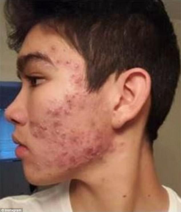 Trong 8 tháng, chàng trai đã chữa khỏi tình trạng da mụn nghiêm trọng bằng những sản phẩm bình dân giá chỉ khoảng 400 ngàn - Ảnh 2.