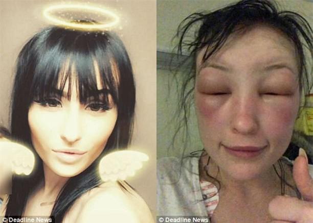 """Tự mình nhuộm tóc ở nhà, người phụ nữ """"tá hoả phát hiện gương mặt biến dạng, thậm chí không thể mở mắt - Ảnh 4."""