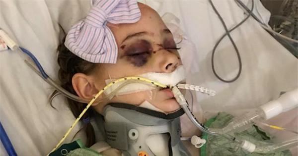 Mỹ: Vừa lỡ tay làm rơi tấm ván nặng 21kg, bố đã nghe tiếng thét thất thanh của cô con gái và gương mặt đẫm máu - Ảnh 2.