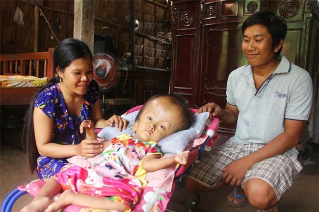 Phép màu kỳ diệu đến với cặp vợ chồng trẻ nuôi con gái 4 tuổi bị não úng thủy, đầu to gấp 3 lần trong năm mới - Ảnh 10.