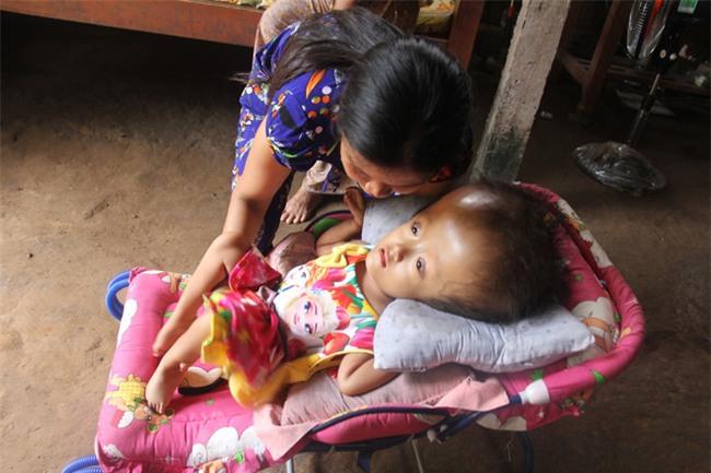 Phép màu kỳ diệu đến với cặp vợ chồng trẻ nuôi con gái 4 tuổi bị não úng thủy, đầu to gấp 3 lần trong năm mới - Ảnh 11.