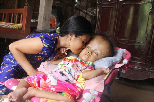 Phép màu kỳ diệu đến với cặp vợ chồng trẻ nuôi con gái 4 tuổi bị não úng thủy, đầu to gấp 3 lần trong năm mới - Ảnh 4.