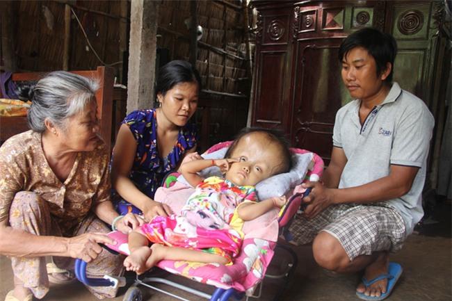 Phép màu kỳ diệu đến với cặp vợ chồng trẻ nuôi con gái 4 tuổi bị não úng thủy, đầu to gấp 3 lần trong năm mới - Ảnh 12.