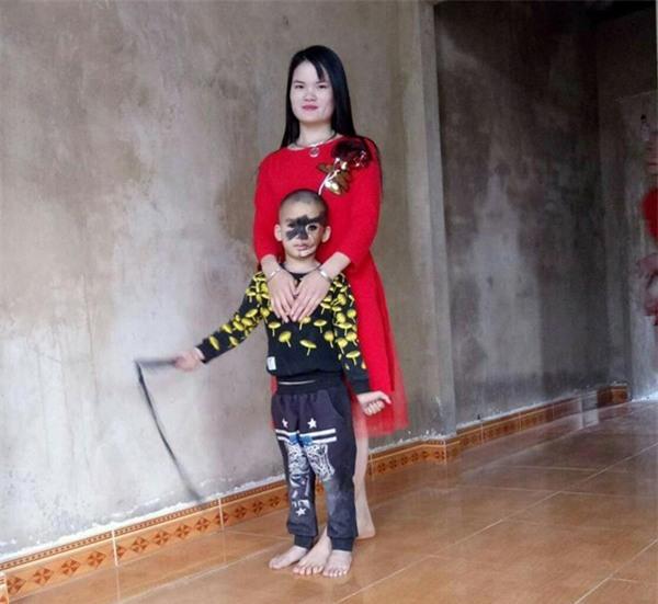 Cái Tết trọn vẹn đầu tiên của cậu bé 6 tuổi có khuôn mặt tựa người rừng tại Yên Bái - Ảnh 1.