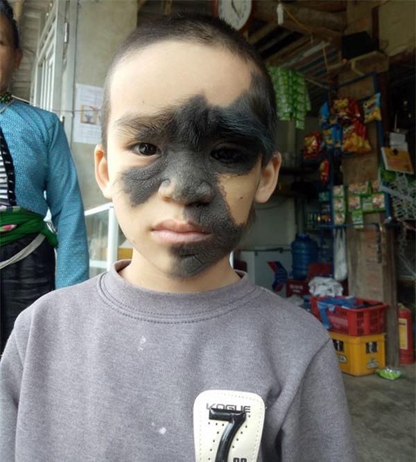 Cái Tết trọn vẹn đầu tiên của cậu bé 6 tuổi có khuôn mặt tựa người rừng tại Yên Bái - Ảnh 2.