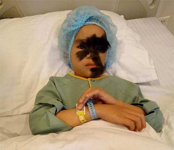 Cái Tết trọn vẹn đầu tiên của cậu bé 6 tuổi có khuôn mặt tựa người rừng tại Yên Bái - Ảnh 3.