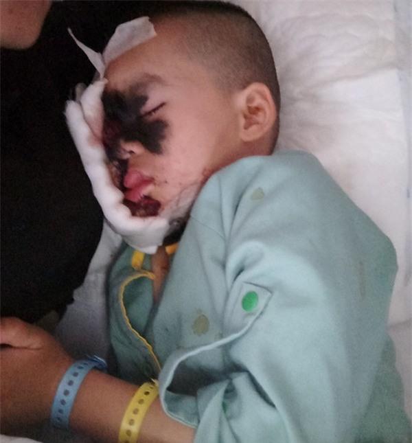 Cái Tết trọn vẹn đầu tiên của cậu bé 6 tuổi có khuôn mặt tựa người rừng tại Yên Bái - Ảnh 5.