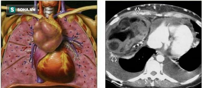 Ho ra máu, tá hoả phát hiện khối u khủng: BS khuyến cáo những dấu hiệu cần đi khám sớm - Ảnh 1.