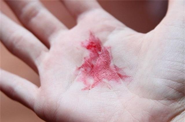 Ho ra máu, tá hoả phát hiện khối u khủng-1