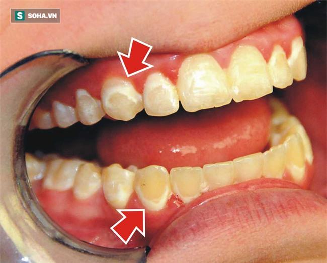90% người Việt sâu răng, viêm lợi, mất răng... do thói quen sai lầm này: Bạn có mắc phải? - Ảnh 1.
