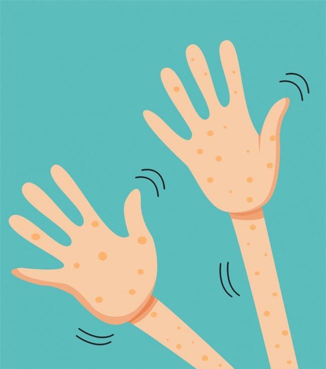 9 triệu chứng sớm của bệnh tiểu đường ai cũng phải biết để nhận ra kịp thời - Ảnh 7.