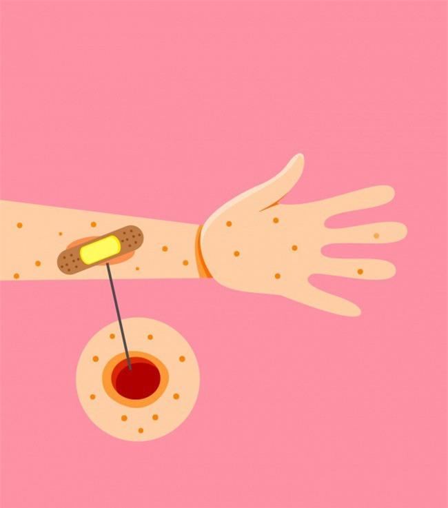 9 triệu chứng sớm của bệnh tiểu đường ai cũng phải biết để nhận ra kịp thời - Ảnh 8.