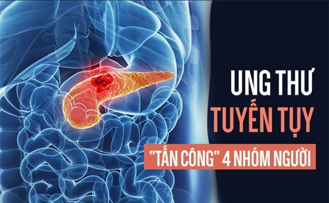 Có 4 đặc điểm này của ung thư tuyến tụy hãy cẩn thận-2