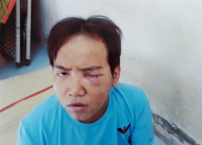 Vụ bảo vệ tổ dân phố sát hại bé trai 6 tuổi ở Sài Gòn: Kẻ gây án bị tâm thần phân liệt thể hoang tưởng - Ảnh 1.
