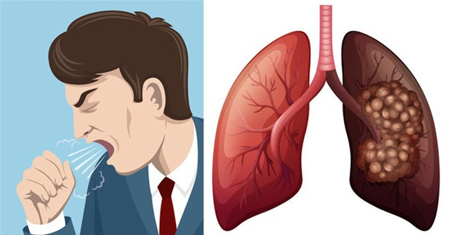 Ung thư phổi: Biết sớm giành lại cơ hội sống cao tới 49%-2