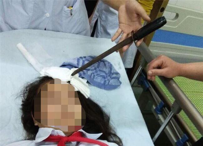 Hà Nam: Bàng hoàng nữ sinh bị bạn phi dao cắm vào trán - Ảnh 1.