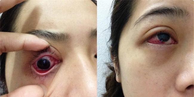 Cô gái bị tụ máu đỏ cả mắt do nhiễm trùng vì thói quen làm đẹp: Chị em hãy cẩn thận! - Ảnh 1.