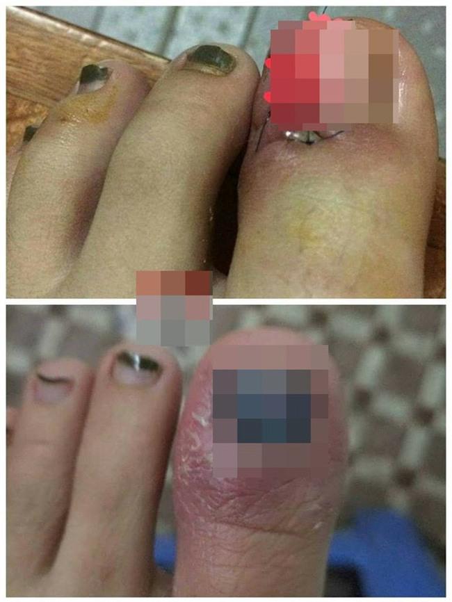 Cô gái bị tụ máu đỏ cả mắt do nhiễm trùng vì thói quen làm đẹp: Chị em hãy cẩn thận! - Ảnh 2.