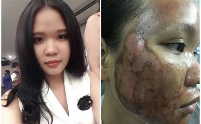 Cô gái bị tụ máu đỏ cả mắt do nhiễm trùng vì thói quen làm đẹp: Chị em hãy cẩn thận! - Ảnh 3.