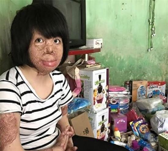 2 người phụ nữ bị chồng tẩm xăng đốt nắm tay nhau tô hồng cuộc sống