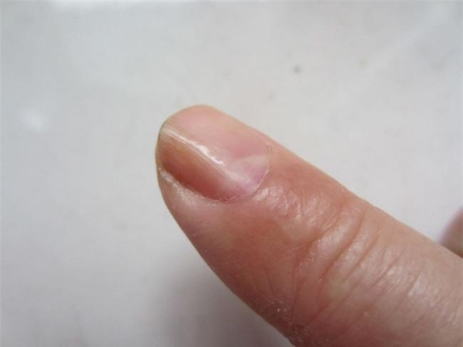 Móng tay thay đổi là dấu hiện của bệnh gan-1