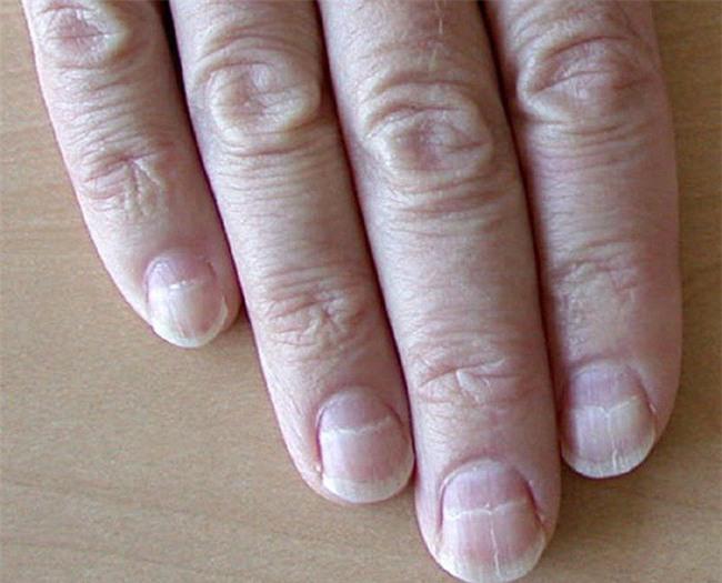 Móng tay thay đổi là dấu hiện của bệnh gan-2