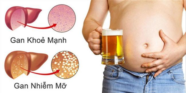 Ngoài rượu bia còn 5 thói quen phá huỷ gan nhanh không kém-1