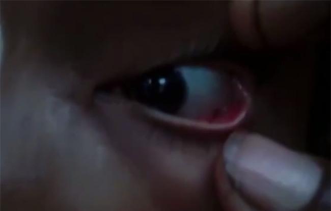 60 con kiến làm tổ, bò ra bò vào trong mắt của bé gái 11 tuổi - Ảnh 1.
