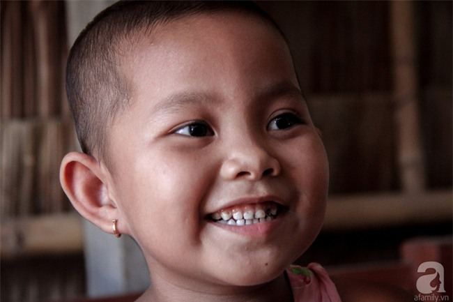 Tâm sự của bé gái 5 tuổi bị u não: Mẹ ơi! Mẹ cứu con đi, con lớn lên đi mần công ty trả tiền cho mẹ - Ảnh 12.