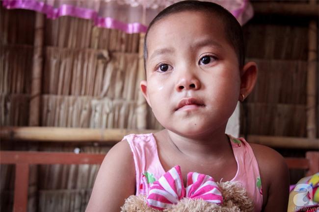 Tâm sự của bé gái 5 tuổi bị u não: Mẹ ơi! Mẹ cứu con đi, con lớn lên đi mần công ty trả tiền cho mẹ - Ảnh 4.