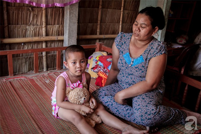 Tâm sự của bé gái 5 tuổi bị u não: Mẹ ơi! Mẹ cứu con đi, con lớn lên đi mần công ty trả tiền cho mẹ - Ảnh 5.