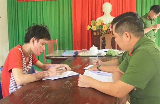 Đà Nẵng: Ghen tuông, nam thanh niên 20 tuổi tạt axít vào người yêu rồi tự sát - Ảnh 1.