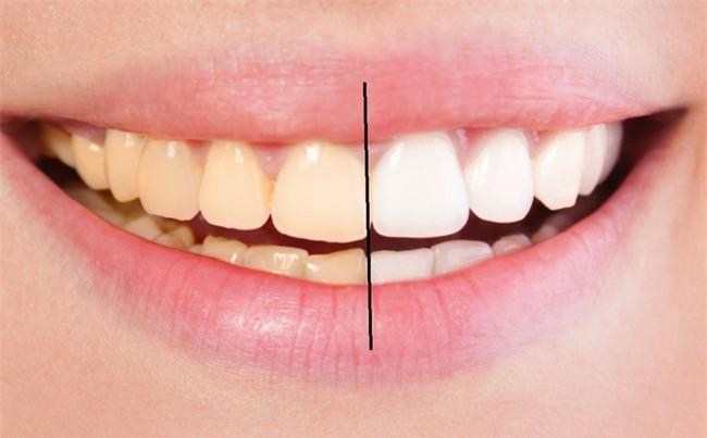 Chuyên gia chỉ 8 cách làm trắng răng hiệu quả và an toàn tại nhà: Lưu lại để dùng khi cần đến-1