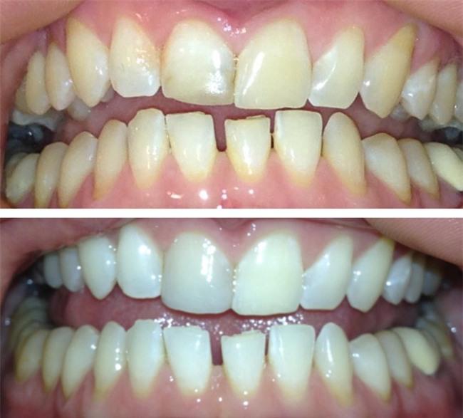 Chuyên gia chỉ 8 cách làm trắng răng hiệu quả và an toàn tại nhà: Lưu lại để dùng khi cần đến-2