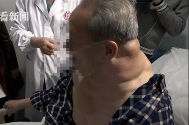 26 năm uống rượu, người đàn ông thành 'quái vật' với chiếc cổ kì dị-1