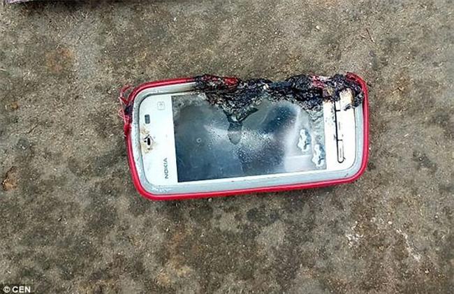 Sử dụng điện thoại trong khi sạc, tai họa ập xuống đầu cô gái trẻ khiến ai cũng bàng hoàng - Ảnh 2.