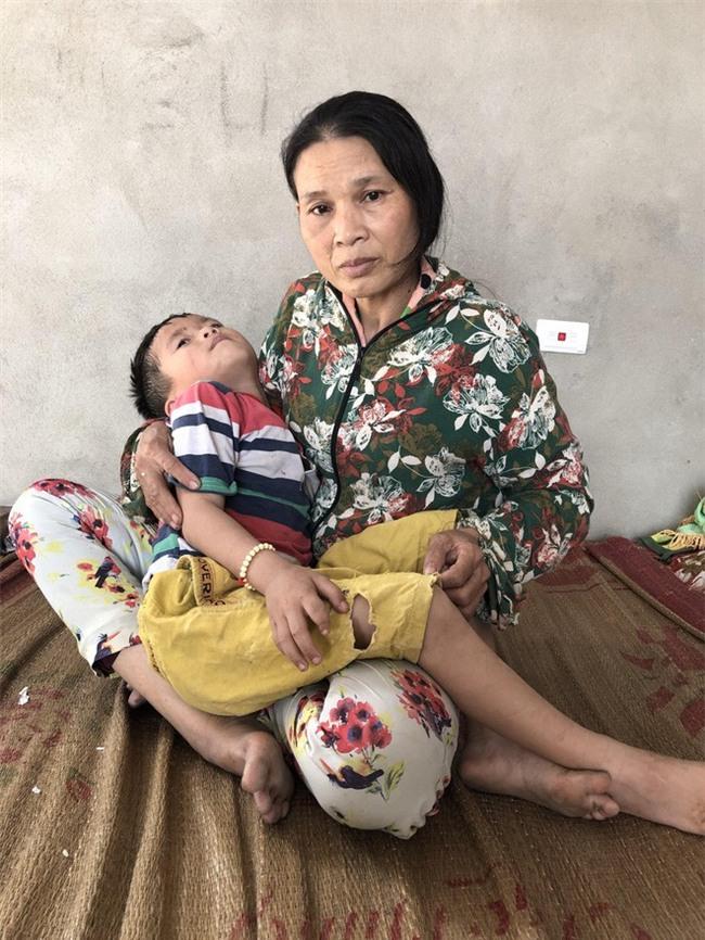 Số phận nghiệt ngã của đứa trẻ không cha, mẹ bị động kinh bỏ nhà đi khi bé mới 6 tháng tuổi - Ảnh 2.