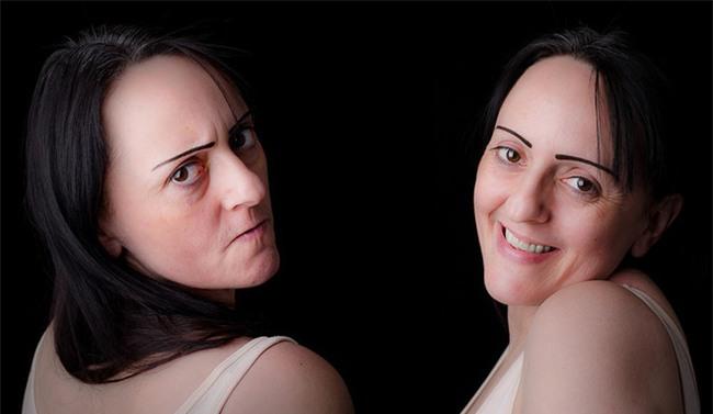 Cẩn trọng với hội chứng rối loạn lưỡng cực như người đẹp Nam Em mắc phải để tránh nguy cơ tự tử - Ảnh 3.
