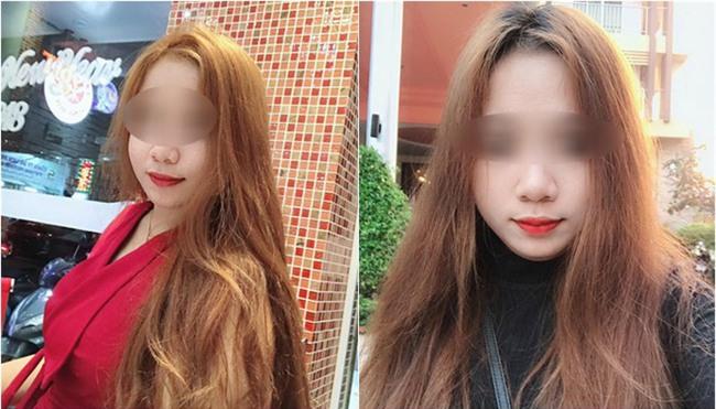 Trải nghiệm kinh hoàng của cô gái suýt hỏng mũi vì tiêm filler, mới 2 ngày đã sưng mọng, mưng mủ trắng kín đầu mũi - Ảnh 4.