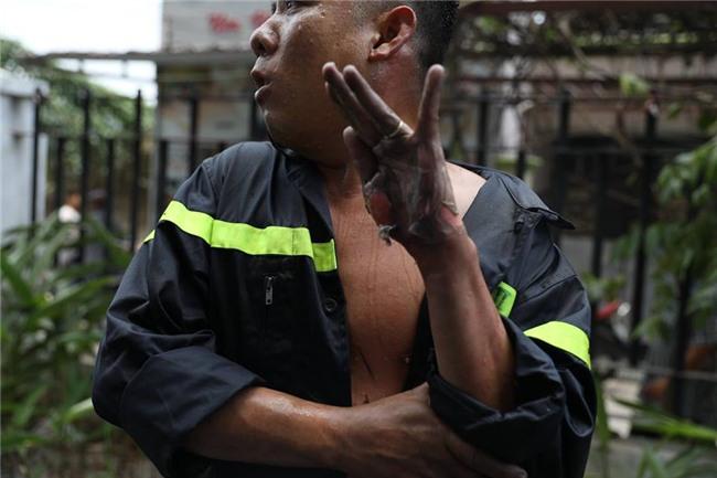Nữ phóng viên chụp bức ảnh anh lính cứu hỏa bị bỏng tuột da tay: Anh ấy chỉ ngồi đó, mắt vẫn hướng về đồng đội và đám cháy - Ảnh 1.