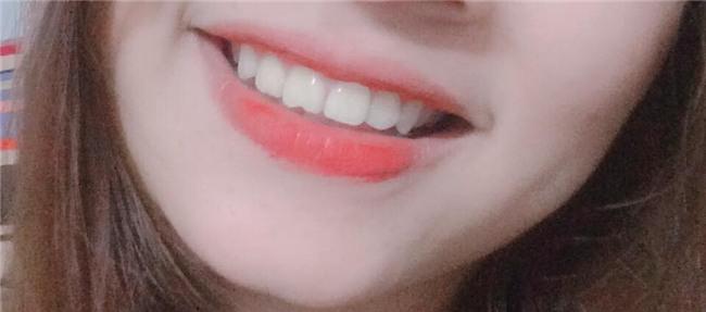 Khoe môi gợi cảm tiện thể khoe luôn ria mép, cô gái khiến cư dân mạng mắt xem ảnh tay nhặt mồm vì cười - Ảnh 14.