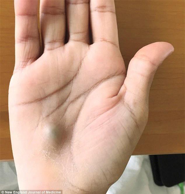 luoi ve sinh rang mieng, thanh nien khong ngo mac trong benh chi tu khoi u tren tay - 1