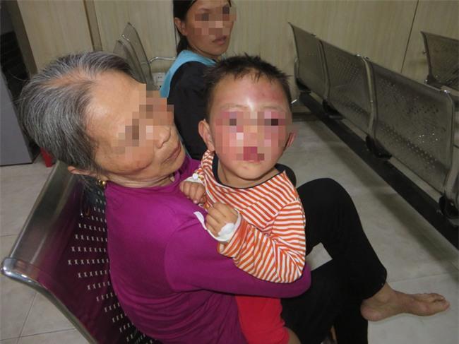 Nghệ An: Nghi vấn bé trai 2 tuổi bị cha dượng bạo hành khiến mặt mũi sưng phù, bầm tím - Ảnh 1.