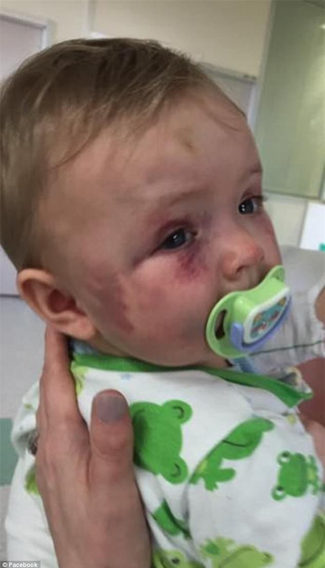Dùng muỗng đánh dập mặt con gái 8 tháng tuổi nhưng không bị phạt tù, người mẹ độc ác còn nhắn tin khiêu khích chồng cũ - Ảnh 3.