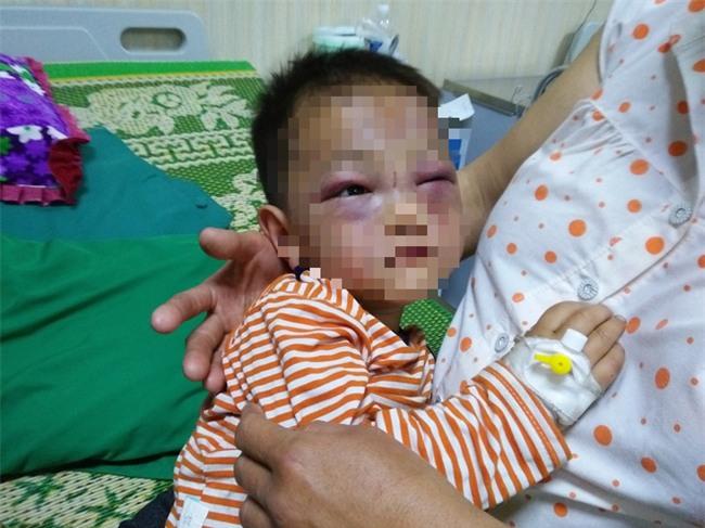 Xót cảnh bé trai 2 tuổi đẻ ra không biết mặt cha, đến khi mẹ lấy chồng thì bị cha dượng đánh đập phải nhập viện cấp cứu - Ảnh 1.