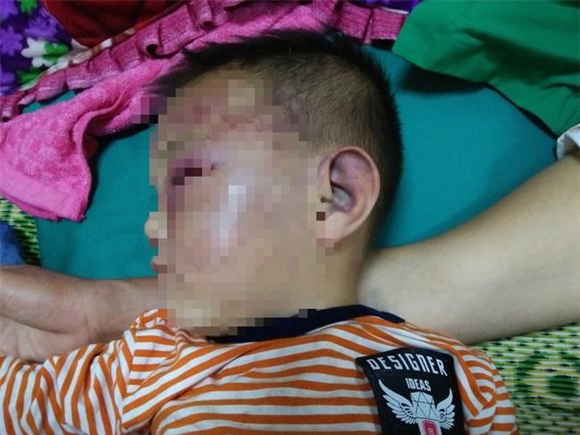 Xót cảnh bé trai 2 tuổi đẻ ra không biết mặt cha, đến khi mẹ lấy chồng thì bị cha dượng đánh đập phải nhập viện cấp cứu - Ảnh 3.