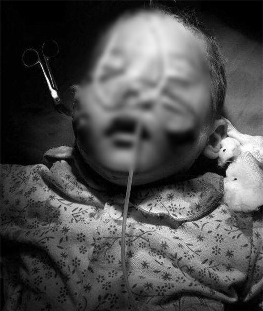 Lào Cai: Sang nhà chú chơi, cháu bé 29 tháng tuổi bị chó cắn dã man vào mặt - Ảnh 1.